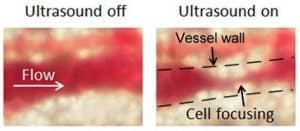 Ultrasound focusing of blood flow directly in the vessels is shown in this image.