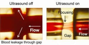Wall-free blood transportation using virtual ultrasound walls is shown in this image.