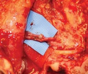 Completed arterial and venous microanastomosis