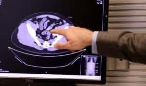 Dr. Conan Mustain points to enlarged lymph nodes on Pond's scan.