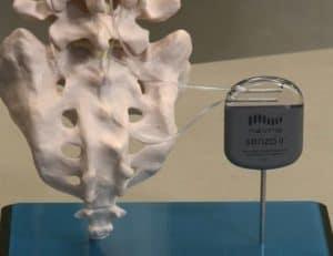 spinal cord simulator