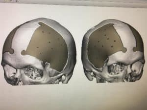 Images of Joshua Moody's skull following surgery.