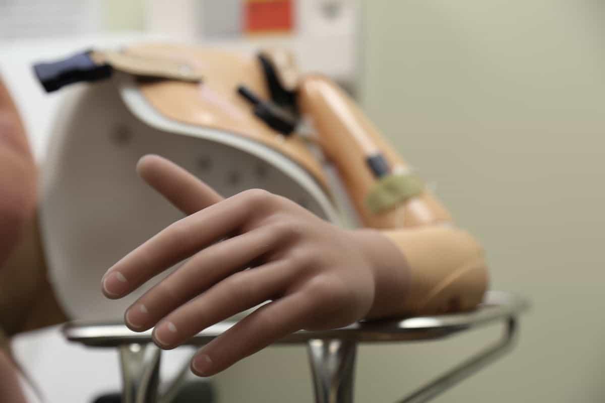 Arm prosthesis