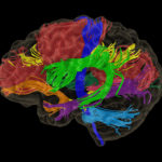Screen shot of software, brightly colored brain
