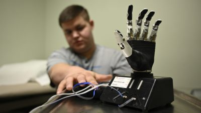 Bryce Cook reaches toward a therapy tool used to help patients learn to use muscle sensors to control a robotic prosthetic.
