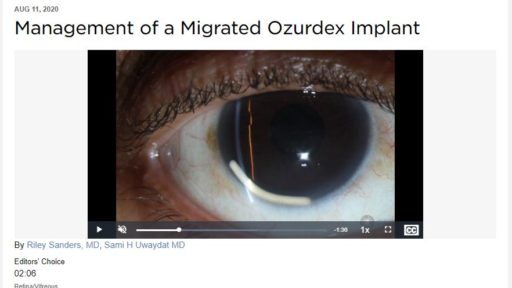 A clip from a video by Riley Sanders, M.D., and Sami Uwaydat, M.D., featured on the American Academy of Ophthalmology website, where it's accessible to an international audience for training.