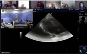 The sonogram demonstration allowed students to see the demonstration as it also displayed results of the scan.